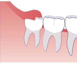 why is it called wisdom tooth dr sandy v